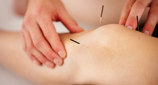 Acupuncture Kingston